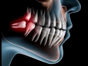 cirugia dental