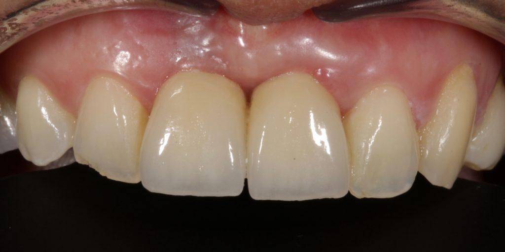 periodoncia antes y despues las palmas