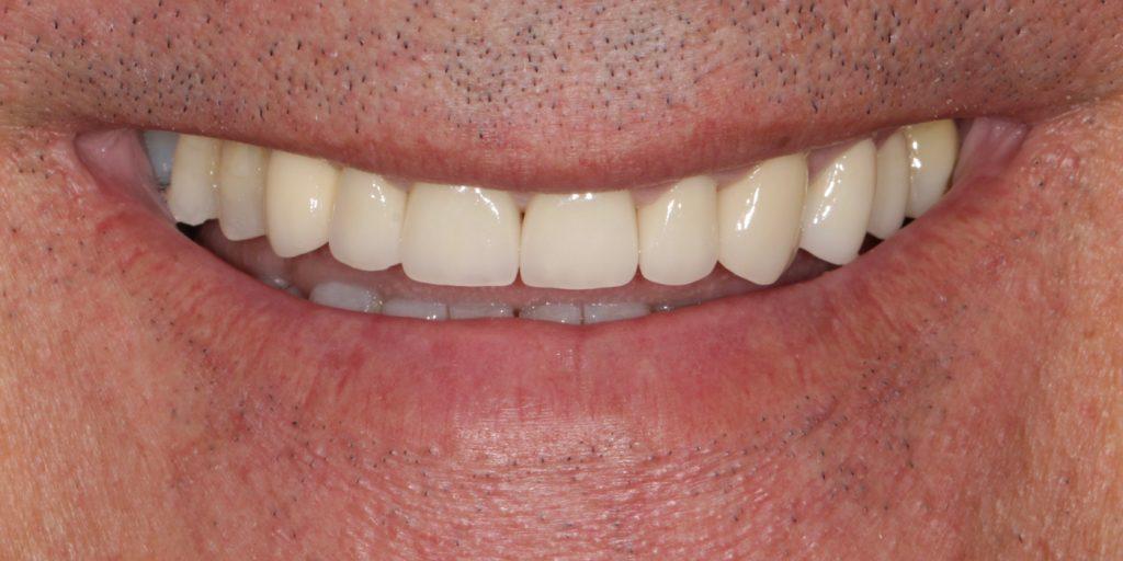 ortodoncia invisible antes y despues