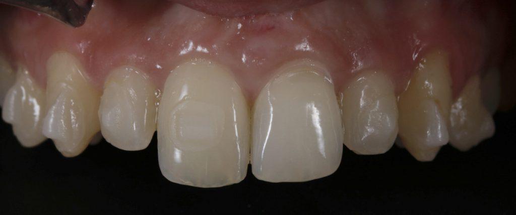 blanqueamiento dental antes y despues