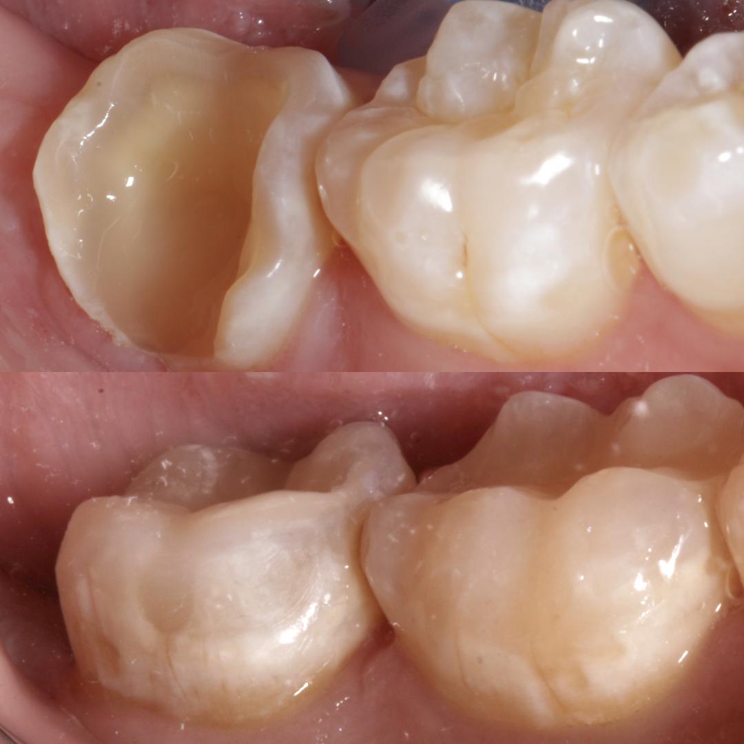 casos clinicos dentales