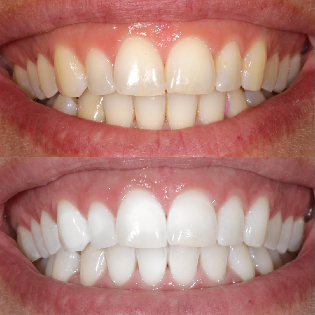 casos-dentista5