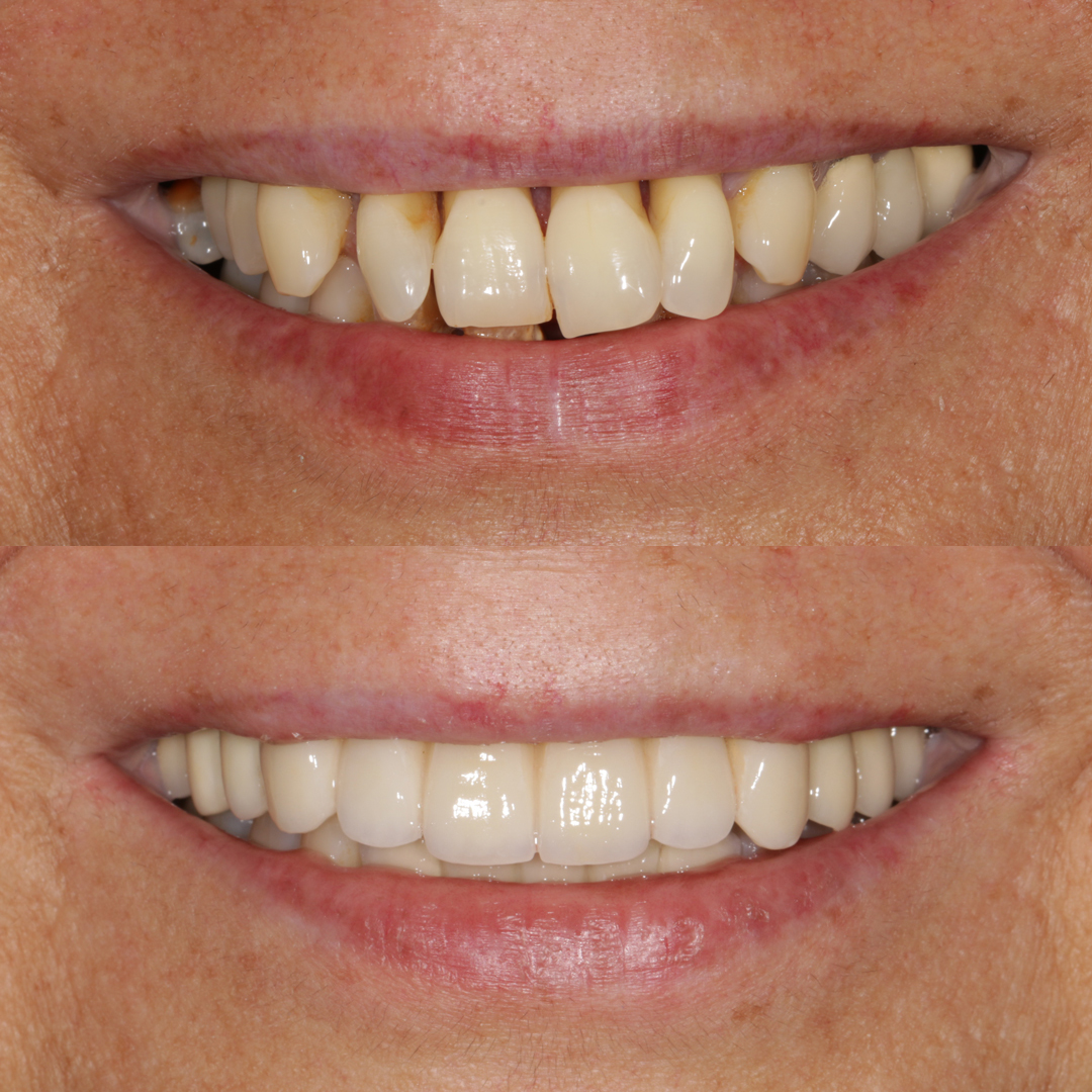 casos-dentista8