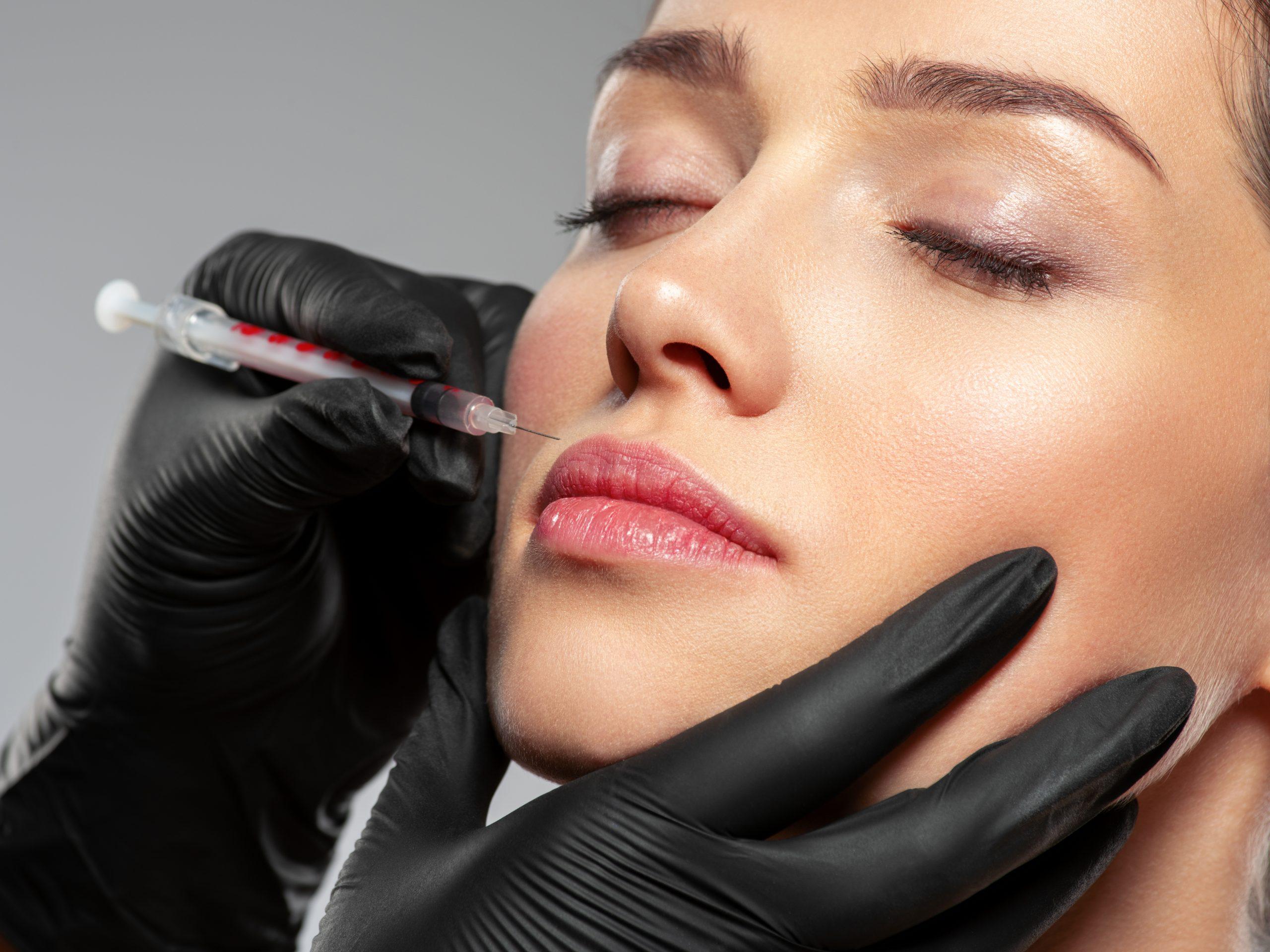 Labios Medicina Estetica